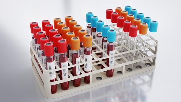 C型肝炎の検査
